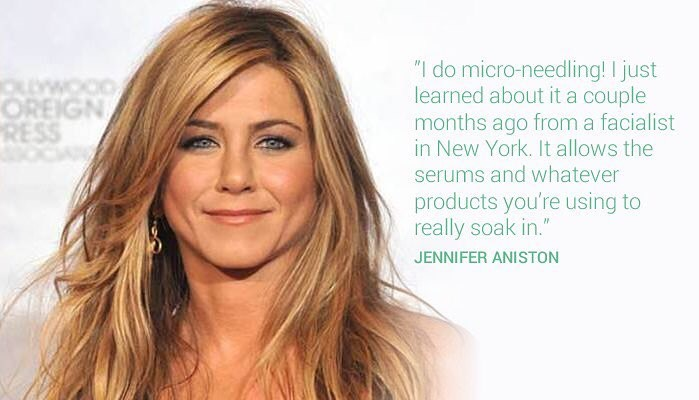 Beauty: Could micro-needling be the key to looking younger ...
